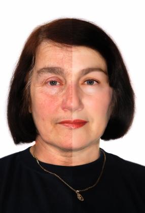 Čištění pleti ultrazvukem zajistí kompletní rozjasnění a regeneraci pleti, působí proti stárnutí, vyhlazuje vrásky...