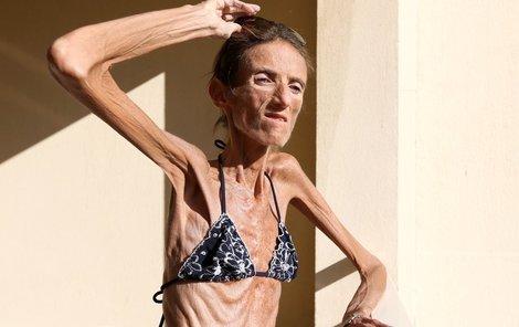 Anorexie zničila ženě život.