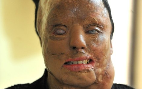 Ženě je 27 let. Takto vypadá po útoku kyselinou.