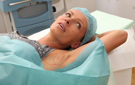 Květen 2013  Odstranění pocení botoxem.