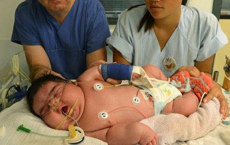 Podle lékařů šlo porodní nadváze malé Jasleen předejít.