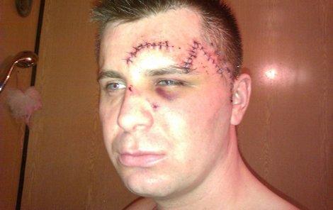 Takhle vypadal Radim Dostál poté, co mu lékaři několik ran sešili.