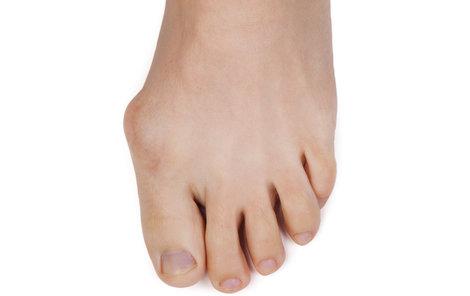 Co dělat s vybočujícím palcem, za který se nejspíše stydíte?