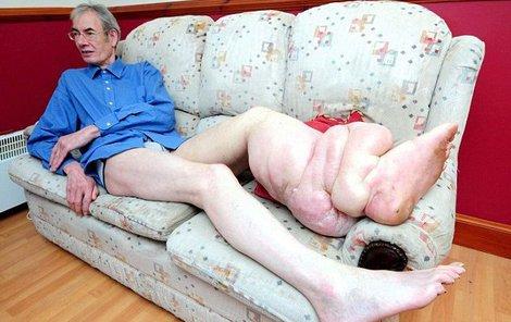 Důchodce měl velké bolesti...