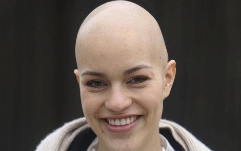 Ani s holou hlavou neztrácela na půvabu. Šestadvacetiletá Julie Pazderková podlehla boji s rakovinou 2. září po několika sériích chemoterapie.
