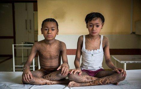 Sourozenci trpí vzácnou kožní nemocí.