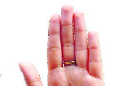 Vyléčit se můžete pomocí akupunktury ruky!