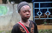Hadí chlapec (16) trpí unikátní poruchou: »Svléká« se z kůže!