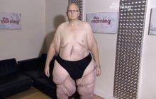 Kdysi nejtlustší muž světa (444 kg) může znovu chodit: Ořezali z něj 27 kg kůže!
