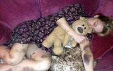 Britka se probudila s fialovými fleky po celém těle, lékaři ji šokovali: Modřiny? Paní, to je leukémie!