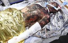 Seškvařená kůže, dýchací trubice v puse! Tak proměnili maskéři hvězdu seriálu Modrý kód Patrika Děrgela (28). 90 % procent popálenin po celém těle z něho udělalo hororový přízrak.