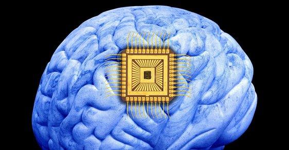 Čip v mozku