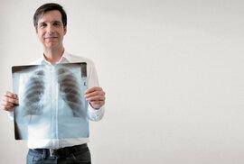 Vyměnit v člověku nemocné plíce za zdravé je radost, říká chirurg Robert Lischke