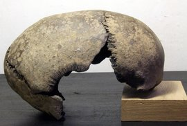 Skafocefalická lebka z Polabí
