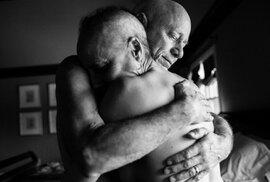 Dojemné snímky páru společně bojujícího s rakovinou