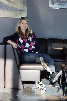 Andrea má bionické nohy, které patří k nejlepšímu, co dnes existuje