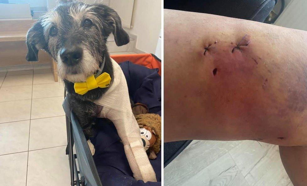 Po útoku pitbulla skončila Drea i její pejsek se zraněními.