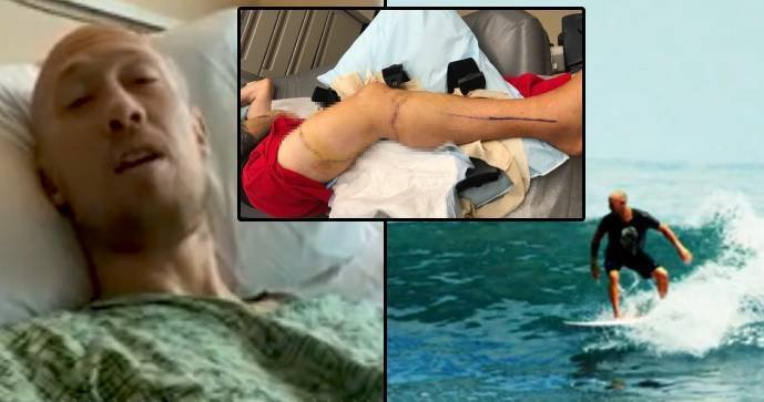 The surfer (38) defended himself against the attack of a great white shark: He hit him in the nose!