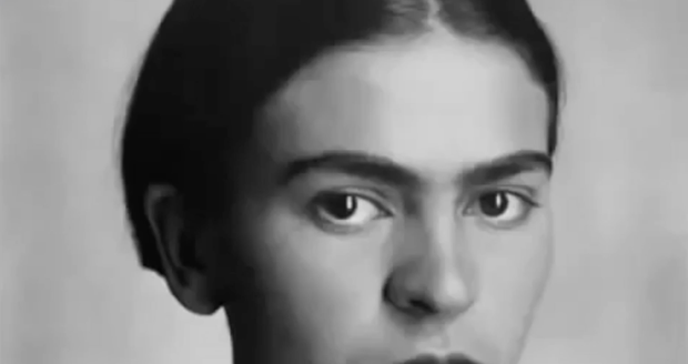 Fridu Kahlo nechtěli po nehodě lékaři ošetřit: Z podbřišku jí trčela železná tyč, nohu měla 11x zlomenou!