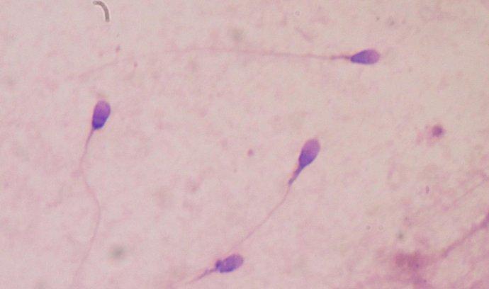 lidské spermie při testování plodnosti