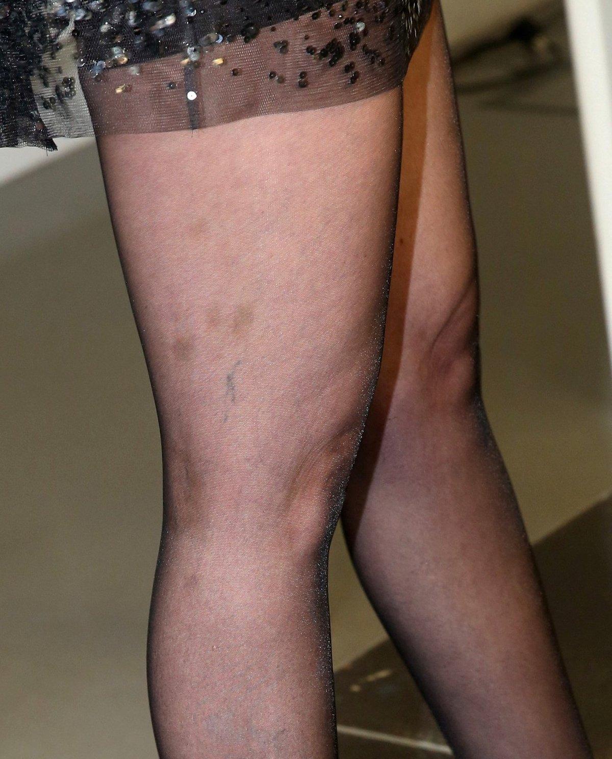 Zpěvaččiny nohy vypadají v současné době, jako by byla příbuzná dalmatina.