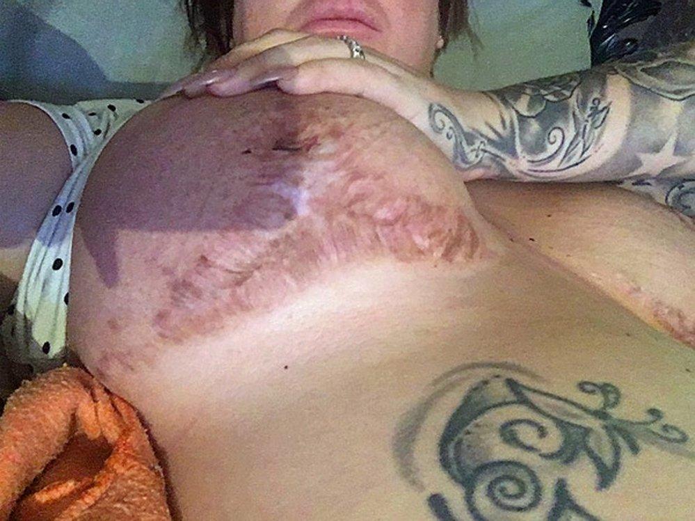 Zmrzačená ňadra Maddison