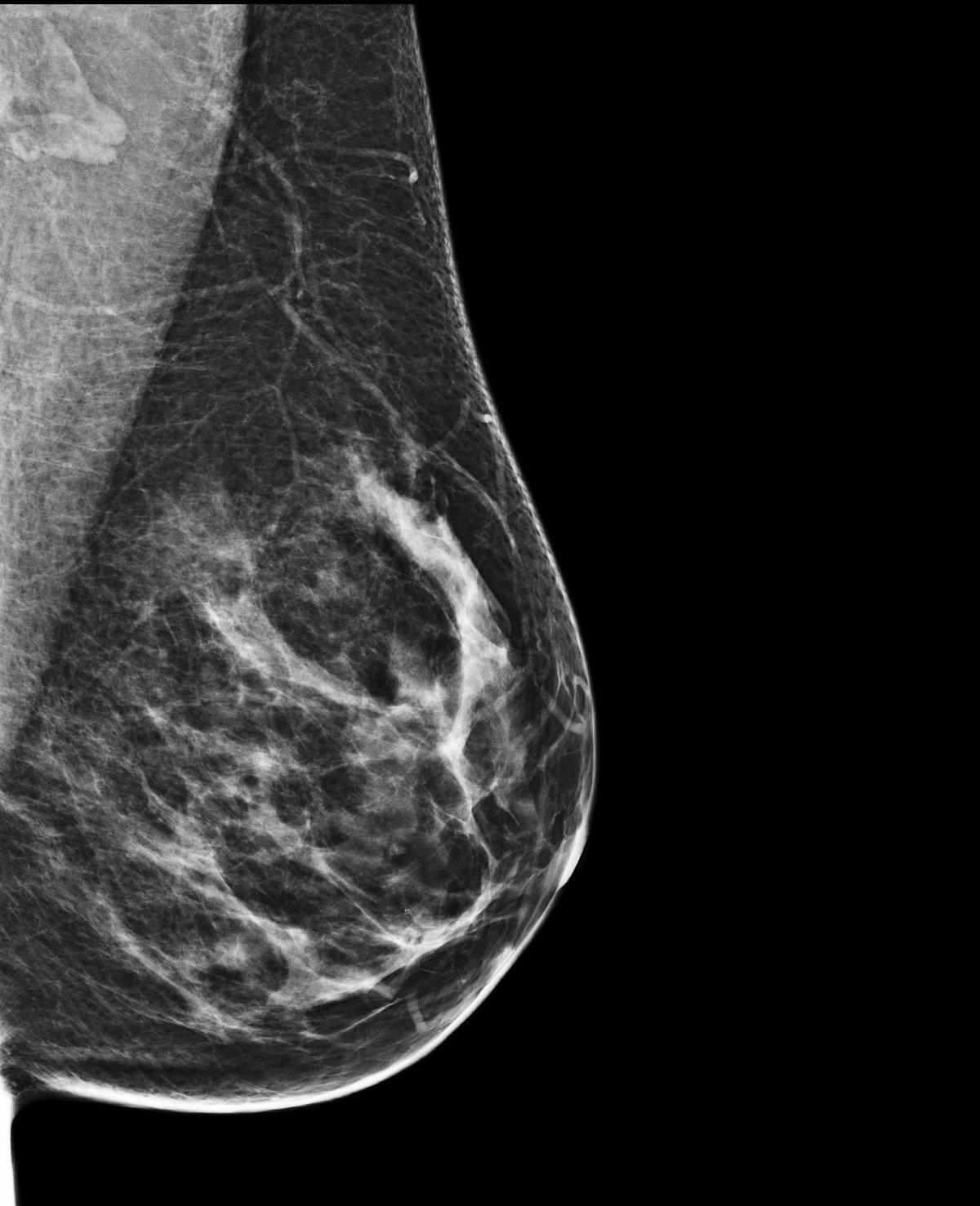 I v takovém shluku prsní žlázy přístroj odhalí zhoubný útvar.