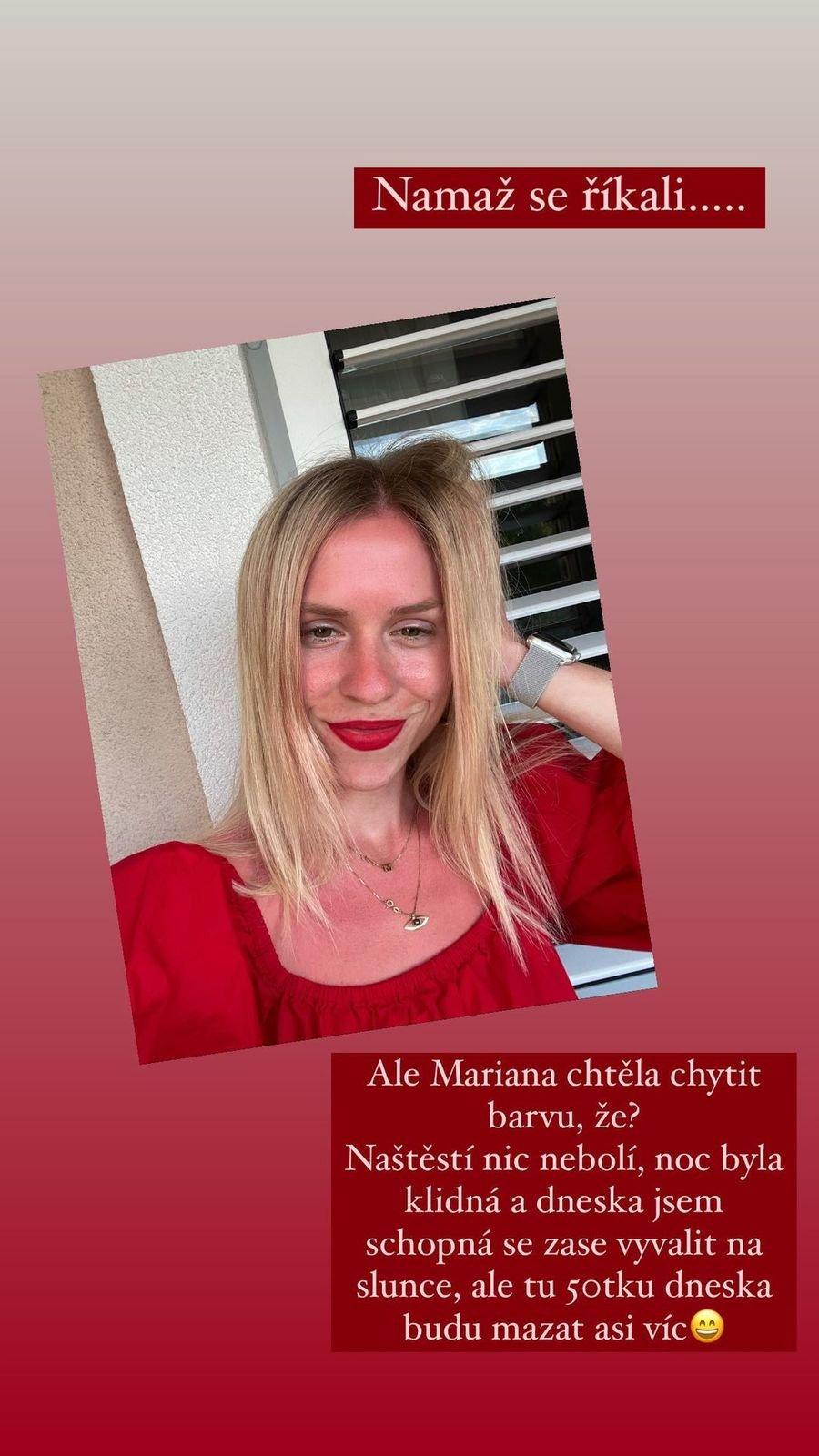 Mariana Prachařová se na dovolené v Chorvatsku spálila