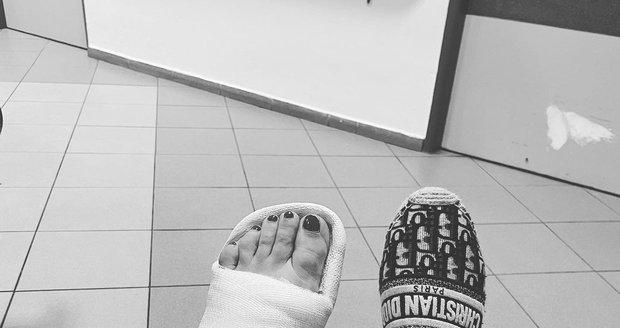 Monika Absolonová má nohu v sádře