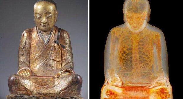 Co že tě bolí?!! Záhadná mumie pod rentgenem