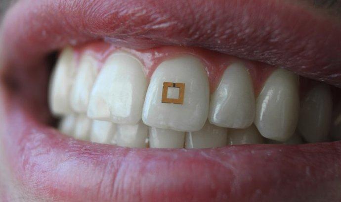 Miniaturní senzor na zub dokáže sledovat a kontrolovat, co jíte a pijete