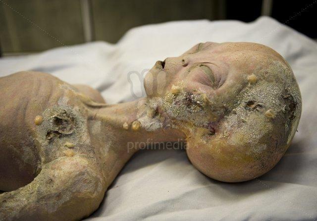 Takto měl vypadat pitvaný mimozemšťan v Roswellu.
