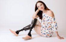 Devětadvacetiletá Tereza působí na první pohled jako aktivní a vyrovnaná mladá žena spozitivním přístupem kživotu. Při druhém pohledu si všimnete, že ji chybí pár prstů na obou rukou. Přišla o ně kvůli vážné infekci, kterou prodělala před čtyřmi lety. Navíc jí lékaři museli amputovat obě nohy vpodkolení a řešilo se také selhání ledvin. Dnes vak žije Tereza normálně díky transplantaci ledviny, a navíc se věnuje práci slidmi se zdravotním postižením…