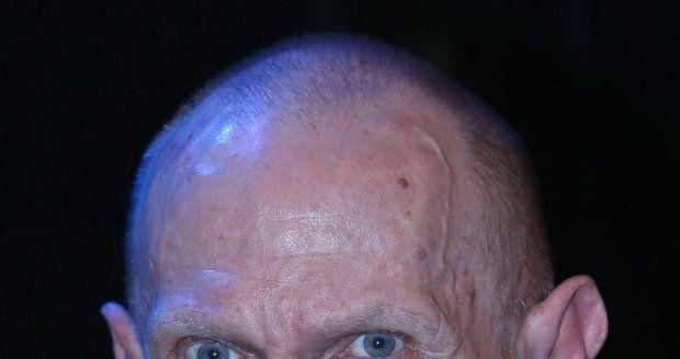 Vladimír Marek může po rakovině hýbat jen pravou rukou.