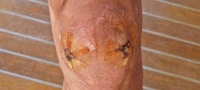 Takhle vypadalo koleno Zlatana Ibrahimoviče 19.6.2021