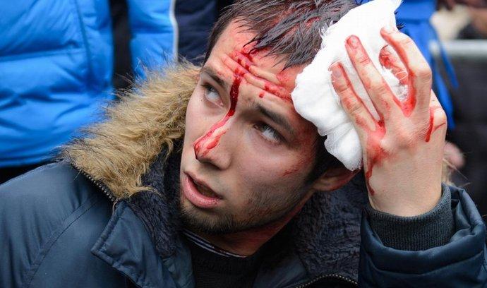 Zraněný prozápadní aktivista ve východoukrajinském Charkově