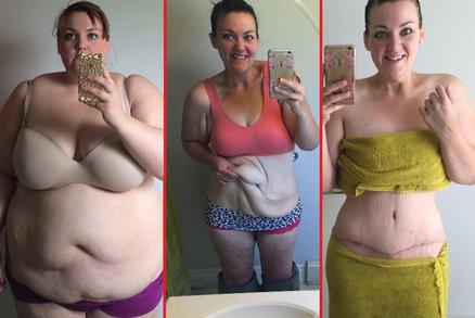 Snoubenec ji opustil, protože začala hubnout: Shodila 80 kilo a poprvé oblékla bikiny