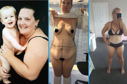 Žena snědla kilo mentolových bonbonů denně: Vážila 150 kilogramů!