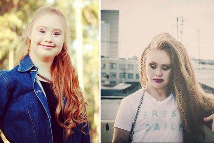 Madeline Stuart: První modelka s Downovým syndromem