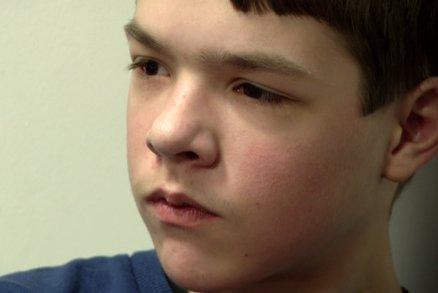 Markovi s epilepsií pomohla operace mozku, při které musel mluvit s lékaři