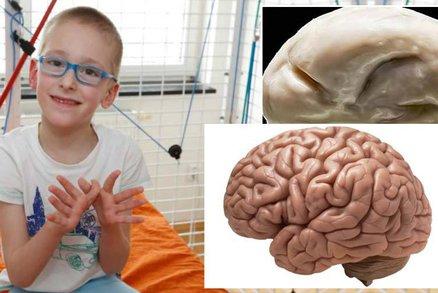Patrik (7) trpí vzácnou vývojovou vadou: Má hladký mozek bez závitů