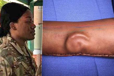 Američance hrozilo po nehodě zohyzdění, ale… Ucho jí vypěstovali na ruce!