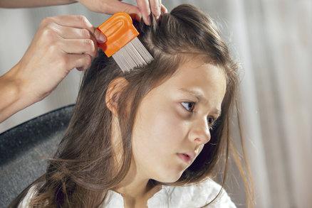 Zase vši! Nemusíte děti stříhat, kupte pořádný šampon a všiváček