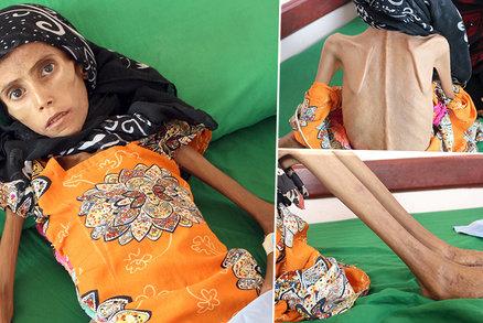Tohle je tvář války: Fatima (12) váží sotva 10 kilo, s rodinou žije pod stromem