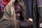 Pozor, šokující záběry: Slzy dívek, kterým rituálně zmrzačili pohlavní orgány