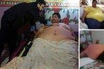 Zemřel nejtěžší muž světa! Vážil 450 kg, zabil ho infarkt