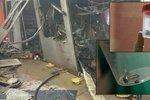 Šokující záběry z nemocnice po teroristickém útoku: Tohle našli v tělech zraněných!