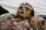 Srdceryvný snímek: Pětiměsíční chlapeček vyhladověl k smrti, jídlo mu vzala válka