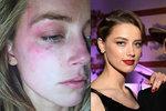 Johnny Depp mlátil svou mladou manželku: Amber Heard ukázala monokl jako důkaz!