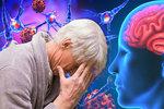 Alzheimera má v Česku přes 150 tisíc lidí. V Praze je jich nejvíc